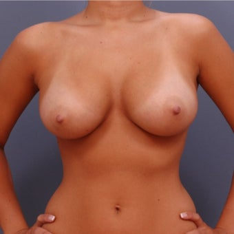22 year old woman treated with Breast Augmentation after 2060772