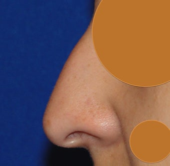 Young woman treated with Rhinoplasty