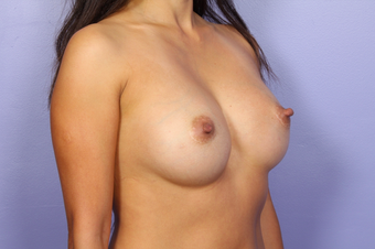 Breast Implants 302544