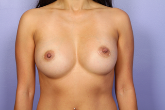Breast Implants after 302544