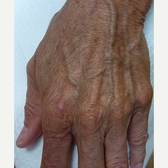 45-54 year old woman treated with Radiesse before 3711089