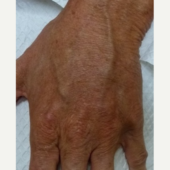 45-54 year old woman treated with Radiesse after 3711089