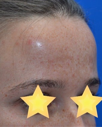 Skin Rejuvenation before 3141055