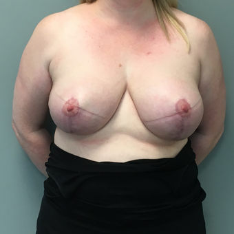 35-44 year old woman treated with Breast Reduction after 3705162