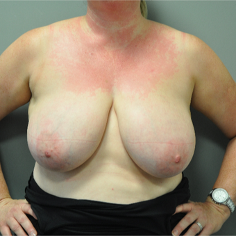 35-44 year old woman treated with Breast Reduction before 3705162