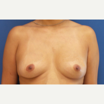 35-44 year old woman treated with Breast Augmentation before 3849695