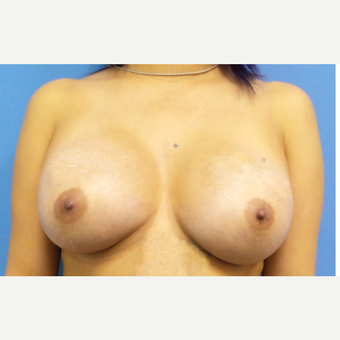 35-44 year old woman treated with Breast Augmentation after 3849695