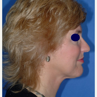 Rhinoplasty after 3325476