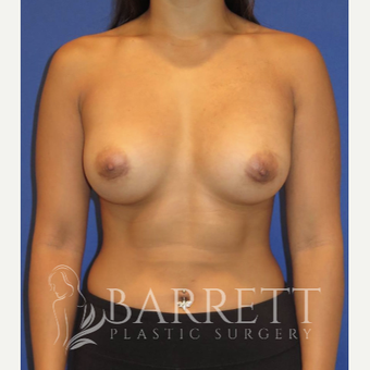 25-34 year old woman treated with Breast Implants after 3584273