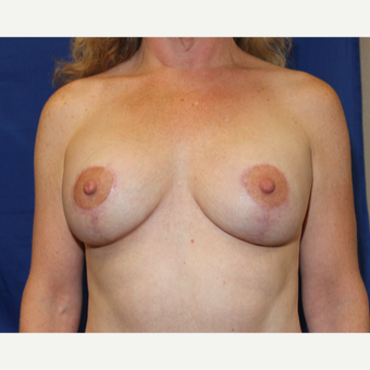 51 year old woman treated with Breast Lift with Implants after 3849933