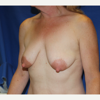 51 year old woman treated with Breast Lift with Implants before 3849933