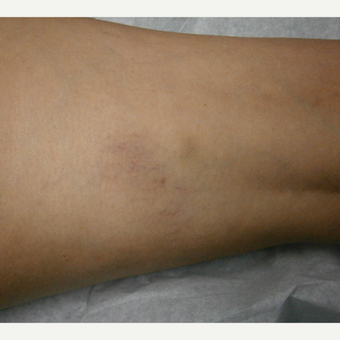 55-64 year old woman treated with Yag Laser after 3153536