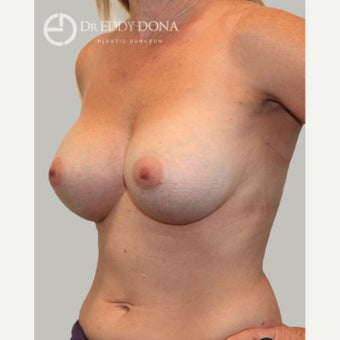 45-54 year old woman treated with Breast Augmentation 1672265