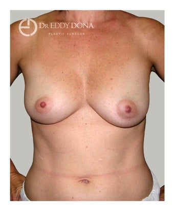 45-54 year old woman treated with Breast Augmentation before 1672265