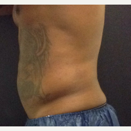 35-44 year old man treated with SculpSure after 3624917