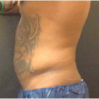 35-44 year old man treated with SculpSure before 3624917