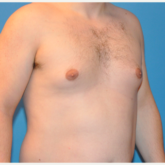25-34 year old man treated with Male Breast Reduction before 3705397