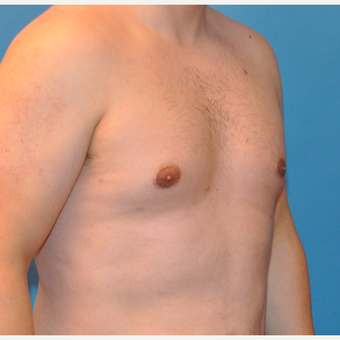 25-34 year old man treated with Male Breast Reduction after 3705397