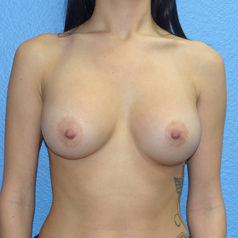 25-34 year old woman treated with Breast Augmentation after 3254826