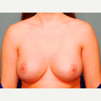 24 y/o Inframammary Sub Muscular Breast Augmentation after 3065973