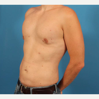 35 year old man treated with Male Breast Reduction + Liposuction after 3298145