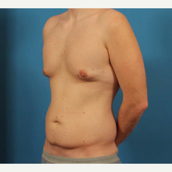 35 year old man treated with Male Breast Reduction + Liposuction before 3298145