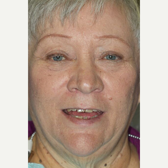 55-64 year old woman treated with All-on-4 Dental Implants before 3113881