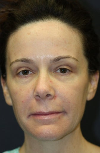 43 year old woman treated with Lip Augmentation before 1555625
