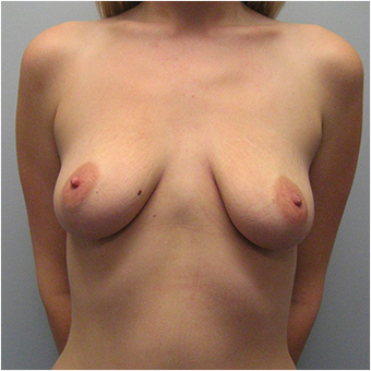 22 year old woman treated with Breast Augmentation before 3468237