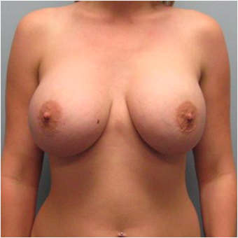 22 year old woman treated with Breast Augmentation after 3468237