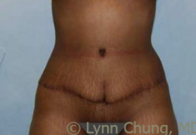 Female in her late 30's- Tummy Tuck after 1506340