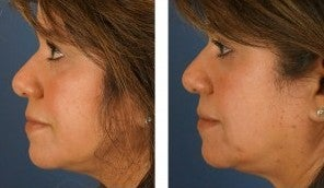 Dermal Fillers for Non-Surgical Cheek Enhancement 1103997