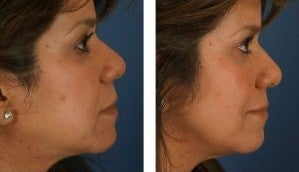Dermal Fillers for Non-Surgical Cheek Enhancement after 1103997