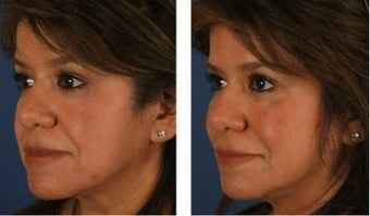 Dermal Fillers for Non-Surgical Cheek Enhancement before 1103997