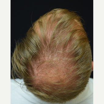 25-34 year old man treated with FUE Hair Transplant before 3213785