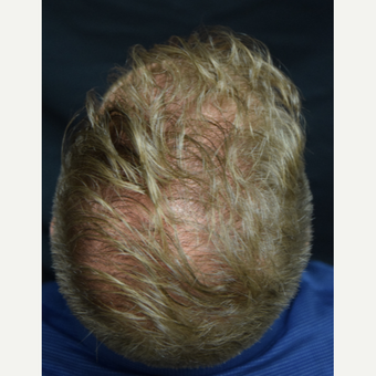 25-34 year old man treated with FUE Hair Transplant after 3213785