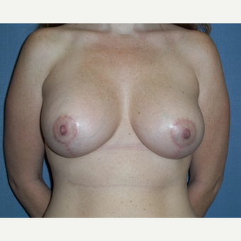 25-34 year old woman treated with Breast Lift with Implants after 3539020