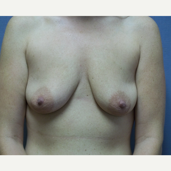 25-34 year old woman treated with Breast Lift with Implants before 3539020