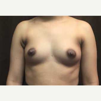 25-34 year old woman treated with Breast Augmentation before 3049422