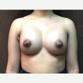 25-34 year old woman treated with Breast Augmentation after 3049422