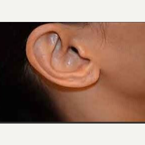 25-34 year old woman treated with Ear Lobe Surgery after 3482732