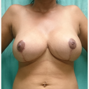 25-34 year old woman treated with Breast Reduction after 3238096