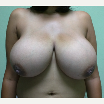 25-34 year old woman treated with Breast Reduction before 3238096