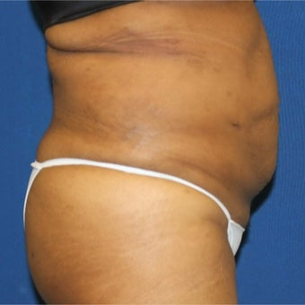 25-34 year old woman treated with Slim Lipo after 1888357