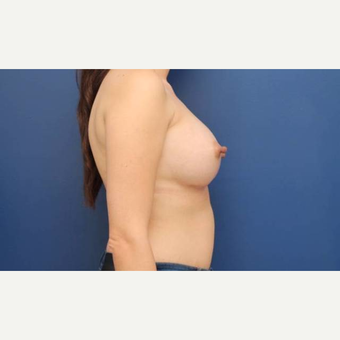 31 year old female who desired breast augmentation with 440cc submuscular Ideal breast implants after 2906213