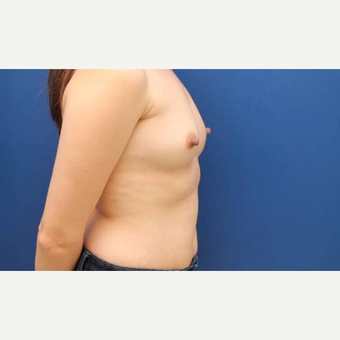 31 year old female who desired breast augmentation with 440cc submuscular Ideal breast implants before 2906213