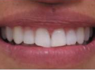 Invisalign - 40 Year Old Female, Extreme Crowding and Rotation, Occlusal Issues after 1498844