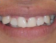 Invisalign - 40 Year Old Female, Extreme Crowding and Rotation, Occlusal Issues before 1498844