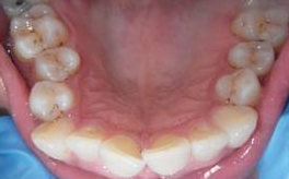 Invisalign - 40 Year Old Female, Extreme Crowding and Rotation, Occlusal Issues 1498844