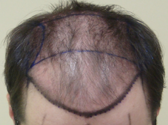 Hair Restoration - Frontal Scalp (3350 grafts) before 1438784
